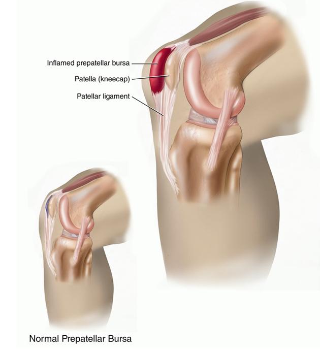 Препателлярная гематома коленного сустава что это артритом челюстно-височного сустава