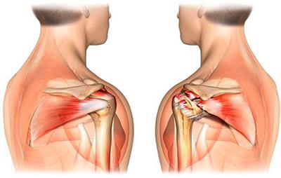 Сухожилия ротаторной манжеты плечевого сустава тендиноз коленного сустава